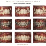 2-damon-braces-crowded-teeth-straight-orthodontist-mcnutt-11