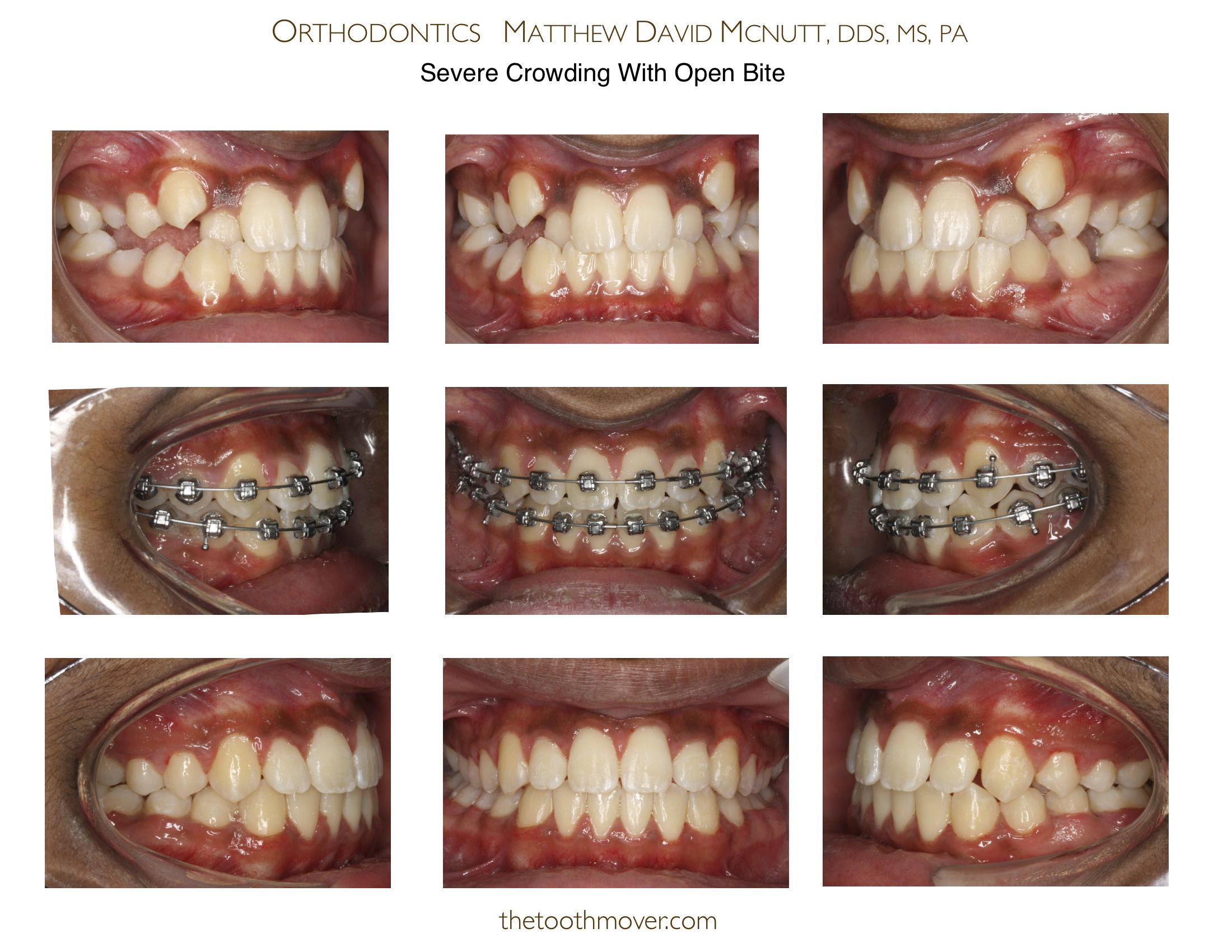 Braces Before And After Small