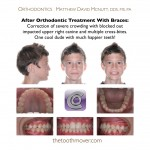 2-orthodontist-smile-braces-cary-clayton-nc-mcnutt1313