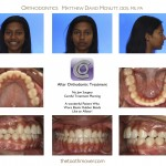 2-overjet-teeth-braces-orthodontist-mcnutt-88.jpg
