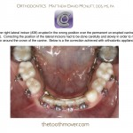 2-phase-I-lingual arch-incisor-blocked-mcnutt-orthodontist-1212