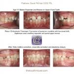 2-phase-I-orthodontic-treatment-expander-mcnutt-cary-clayton-nc-1111