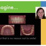 2-smile-crowded-teeth-braces-orthodontist-mcnutt-NC-cary-clayton-88