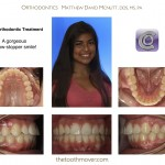 2-smile-straight-teeth-orthodontist-nc-mcnutt-1515