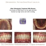 3-Blocked-canine-before-orthodontist-cary-clayton-nc-mcnutt-66