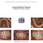 3-Braces-adult-extraction-orthodontist-mcnutt-nc-10