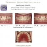 3-Class-III-missing-teeth-retainers-orthodontics-mcnutt-cary-clayton-nc-44