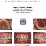 3-Crowding-Damon-Braces-Orthodontist-cary-clayton-nc-mcnutt-77