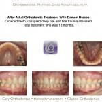 3-adult-orthodontic-treatment-damon-braces-mcnutt-44