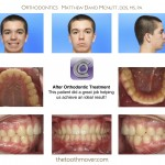 3-canine-blocked-out-impacted-braces-mcnutt-nc-22