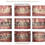 3-crowding-braces-orthodontist-mcnutt-clayton-cary-nc-22