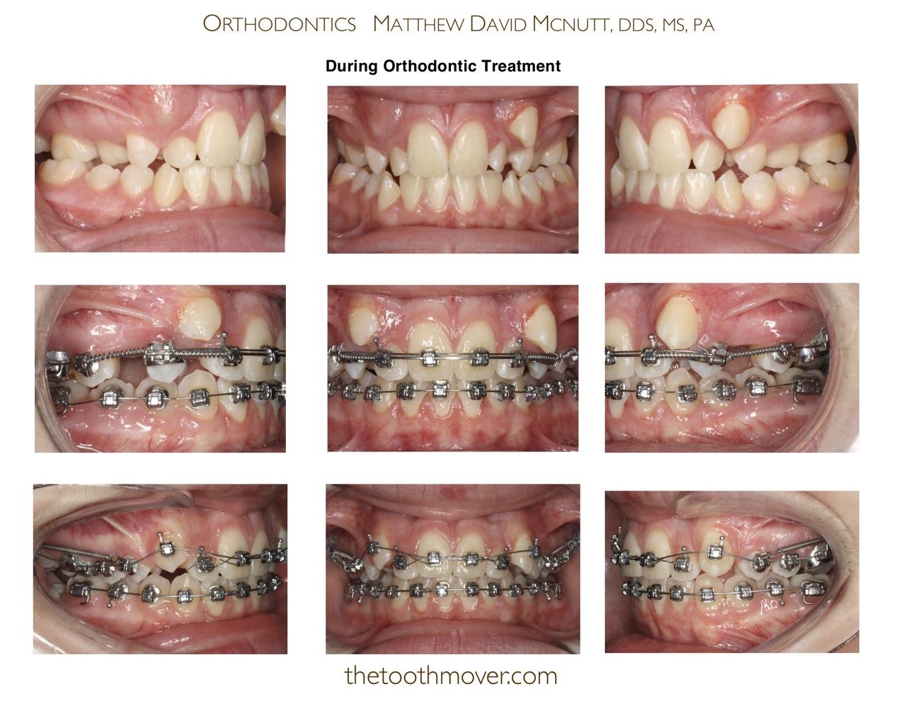 crowding non extraction treatment photos orthodontics