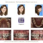 3-crowding-braces-premolar-extraction-orthodontist-mcnutt-11