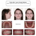3-crowding-braces-premolar-extraction-orthodontist-mcnutt-22