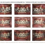 3-damon-braces-crowded-teeth-straight-orthodontist-mcnutt-11
