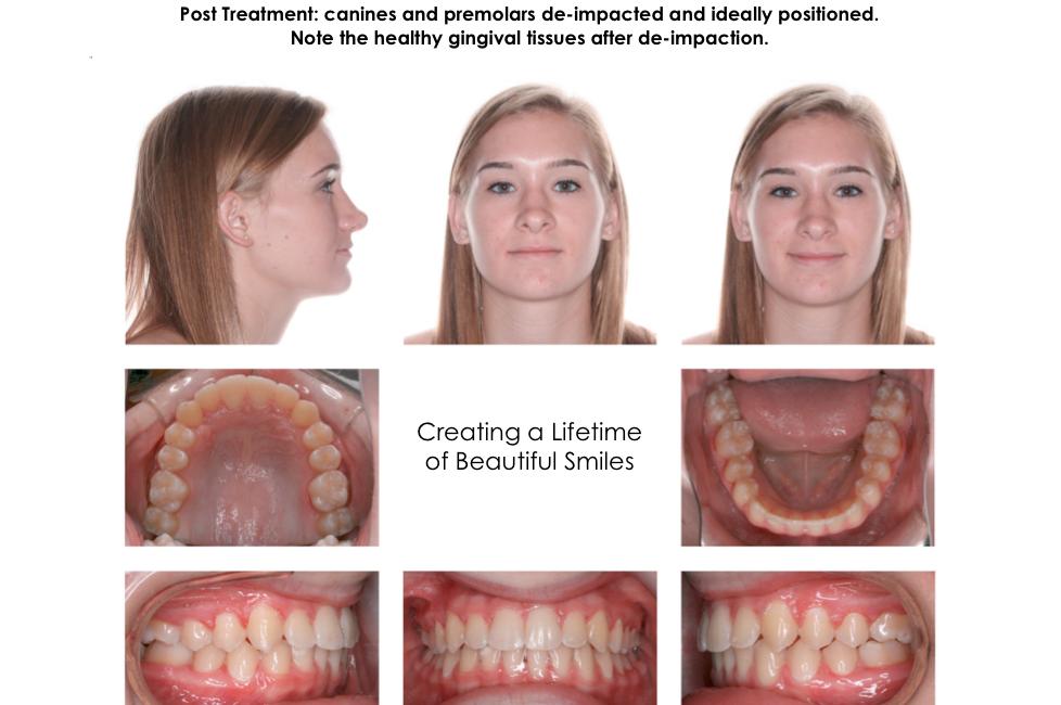 Impacted Blocked Teeth | Orthodontic Treatment Photos