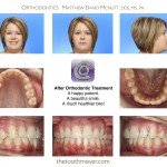 4-Braces-adult-extraction-orthodontist-mcnutt-nc-10