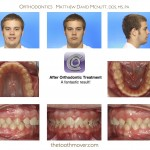 4-Class-II-MARA-Before-McNutt-Orthodontist-aa