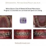 4-Class-III-braces-orthodontist-22