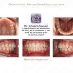 4-Crowding-Damon-Braces-Orthodontist-cary-clayton-nc-mcnutt-77