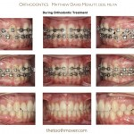 4-crowding-braces-orthodontist-mcnutt-clayton-cary-nc-22