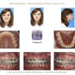 4-crowding-braces-premolar-extraction-orthodontist-mcnutt-11