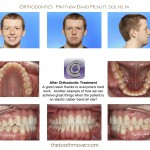 4-narrow-maxilla-cross-bites-braces-cary-clayton-nc-mcnutt-66