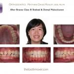 5-Class-III-braces-orthodontist-22
