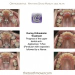 5-crowding-braces-orthodontist-mcnutt-clayton-cary-nc-22