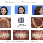 5-crowding-braces-premolar-extraction-orthodontist-mcnutt-11