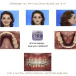 6-crowding-braces-premolar-extraction-orthodontist-mcnutt-11