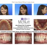 Adult-Braces-Class-II-Division-2-Orthodontist-McNutt-Braces-3