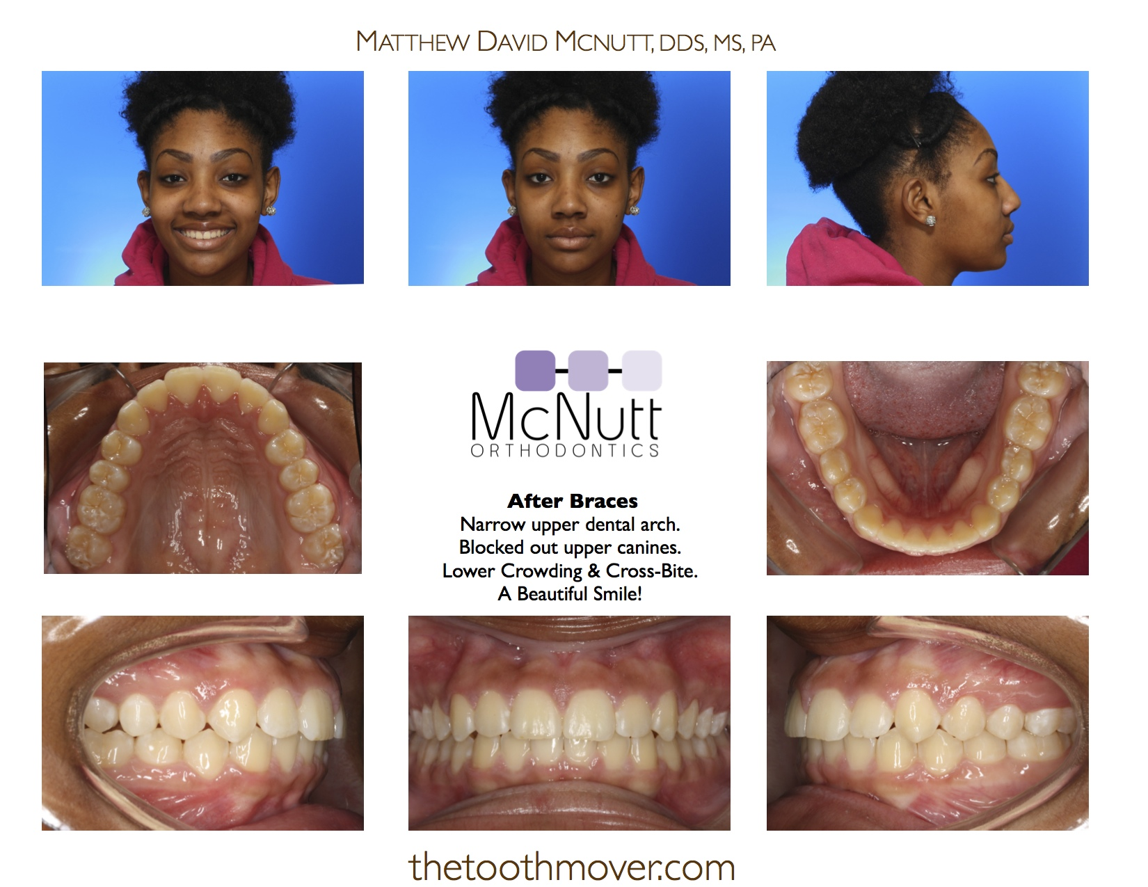 Great before and after adult braces