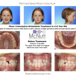 Before-And-After-Braces-McNutt-Orthodontist-Cross-Bite-A1