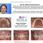 Before-And-After-Braces-McNutt-Orthodontist-Cross-Bite-B1
