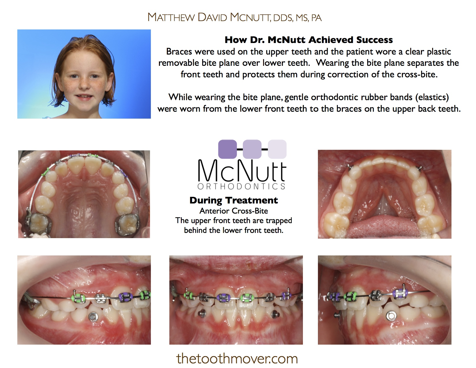Cross bite: before and after treatment in adults and children