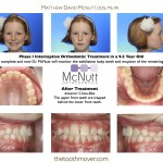 Before-And-After-Braces-McNutt-Orthodontist-Cross-Bite-C1
