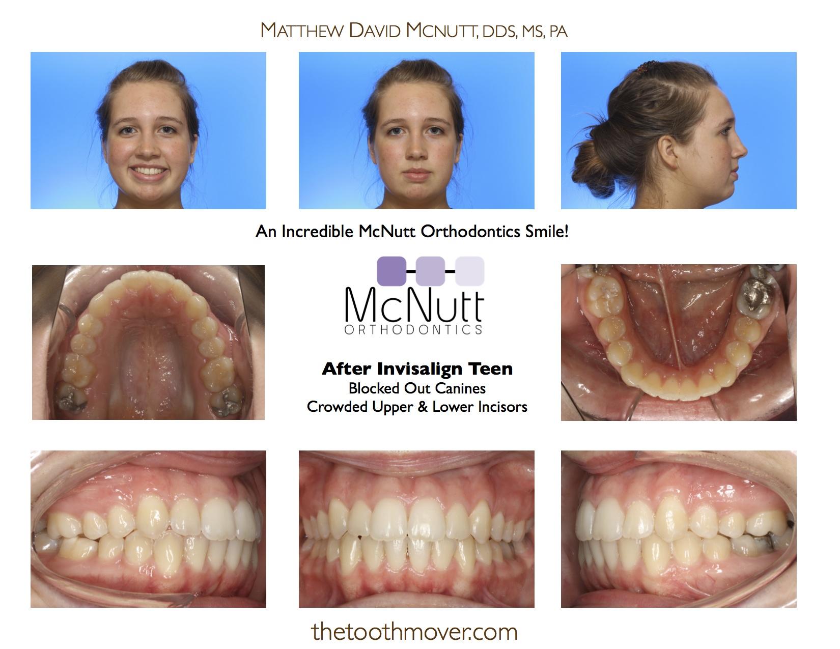 Invisalign Treatment Photos | Orthodontics | Cary NC ...