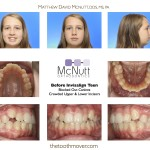 Invisalign Teen Before Crowded Teeth
