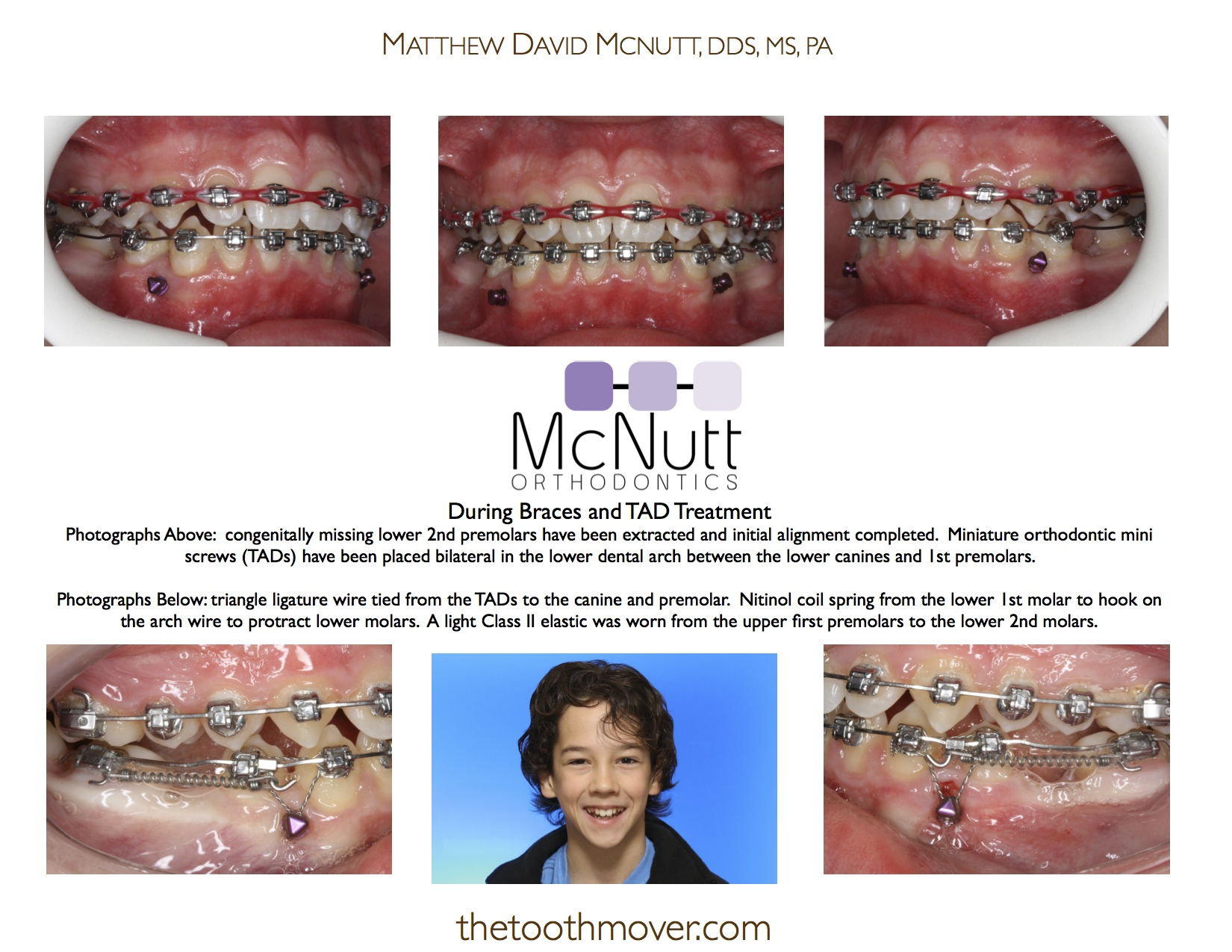 Nice Mouth Wired Shut And Plated Gallery - Electrical and Wiring ...