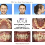 Before Braces: Teen Crowded Teeth Extraction of Upper & Lower 1st Premolars