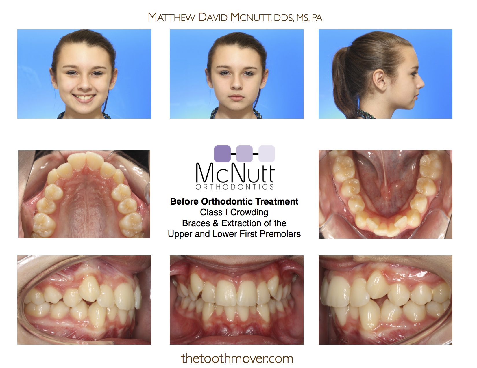 Crowding Extraction Treatment Photos | Orthodontics