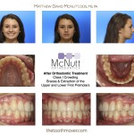 After Braces: Teen Crowded Teeth Extraction of Upper & Lower 1st Premolars