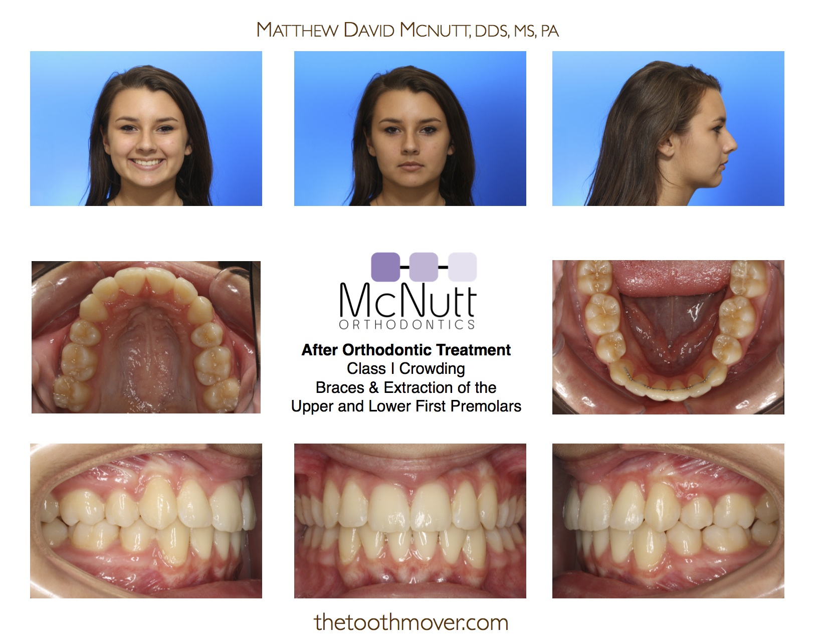 Before and after braces with extractions