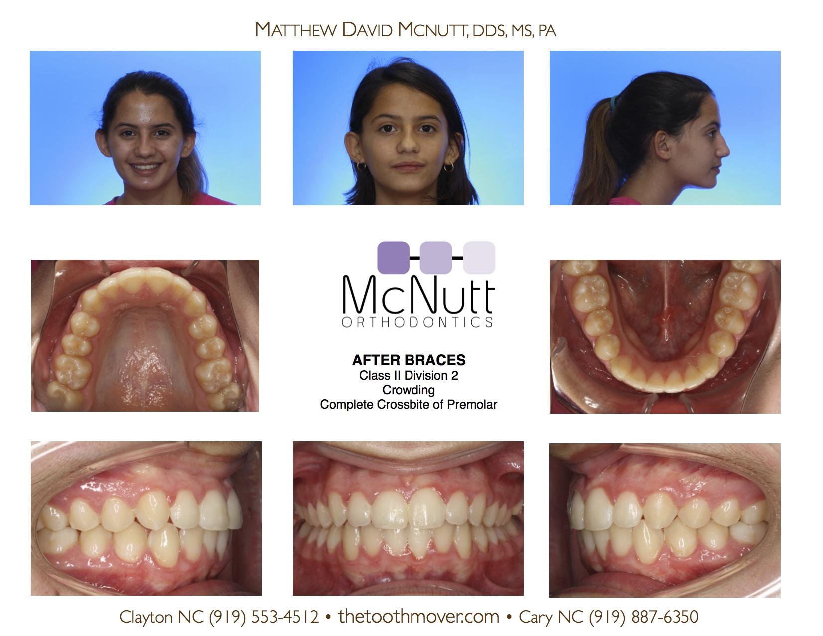 Class Ii Treatment Photos Orthodontics Cary Nc