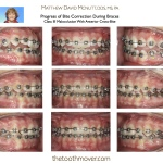 Progress of Bite Correction During Braces Class III Malocclusion With Anterior Cross-Bite