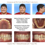 Class-III-Braces-Cary-Raleigh-Clayton-Orthodontist-Braces-McNutt-1