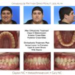 Class-III-Braces-Cary-Raleigh-Clayton-Orthodontist-Braces-McNutt-2