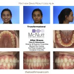 After Braces  Class III Malocclusion  Anterior & Posterior Cross-bites Blocked Out Canines 2nd Molars Erupted Into  Complete Cross-bite