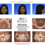 Before Braces Class III Malocclusion  Anterior & Posterior Cross-bites Blocked Out Canines 2nd Molars Erupted Into  Complete Cross-bite